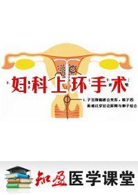 妇科真人上环手术视频_妇科上环手术_知盈医学课堂